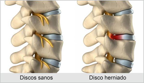 hernia discal diagrama